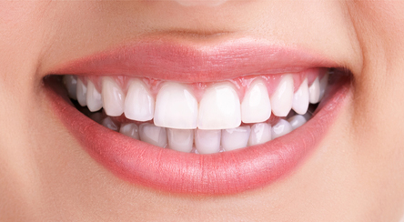 Teeth Whitening / Gum Treatment